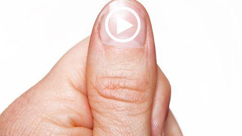 Was sind Video-Thumbnails? Wozu sind diese gut?